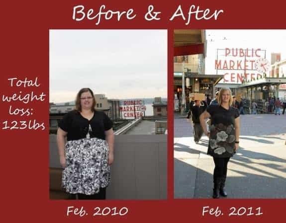 Before & After Gastric Bypass Surgery | JavaCupcake.com